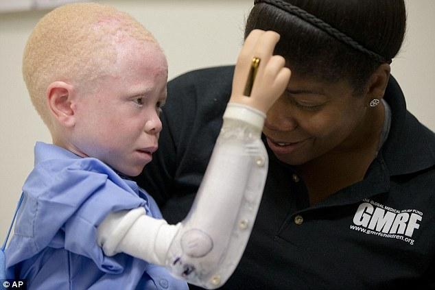 Você vai ficar chocado ao saber que pessoas albinas têm membros ...