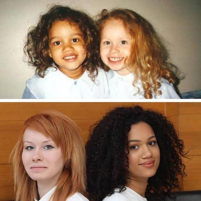 Gêmeas de aparência étnica totalmente diferente (7)