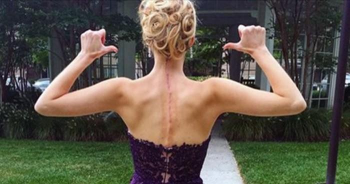 cicatriz revela doença invisível (15)