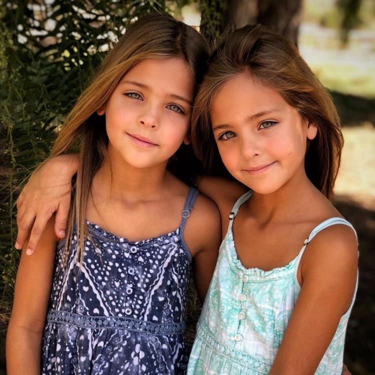 gêmeas consideradas as mais lindas do mundo (7)