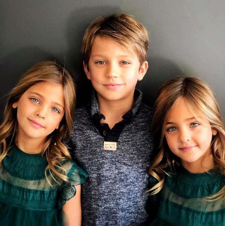 gêmeas consideradas as mais lindas do mundo (8)