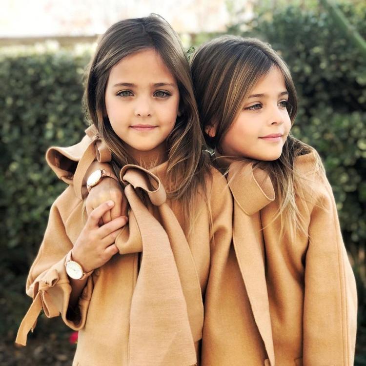 gêmeas consideradas as mais lindas do mundo (9)