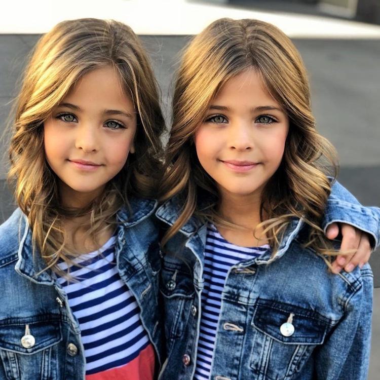 gêmeas consideradas as mais lindas do mundo (10)