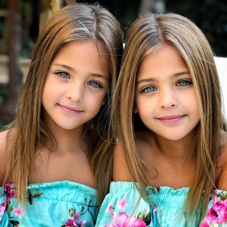 gêmeas consideradas as mais lindas do mundo (12)