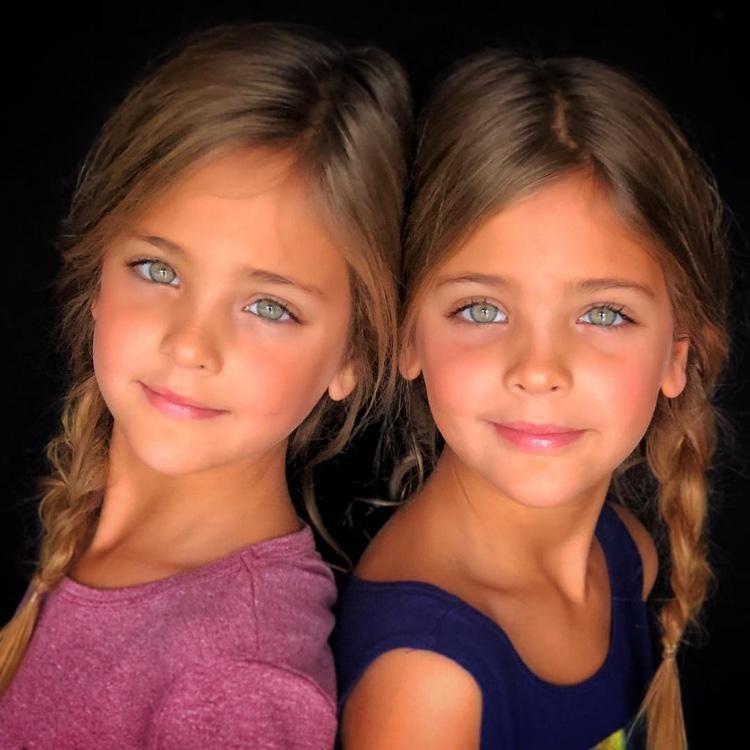 gêmeas consideradas as mais lindas do mundo (13)