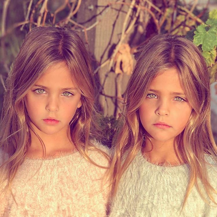 gêmeas consideradas as mais lindas do mundo (14)