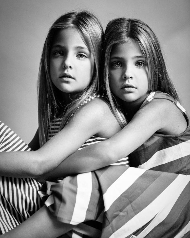 gêmeas consideradas as mais lindas do mundo (15)