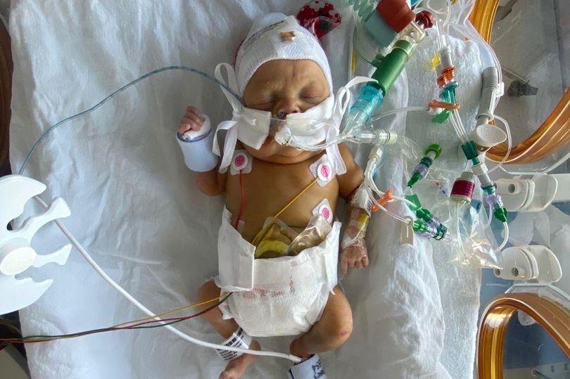 bebe-de-7-polegadas-segue-se-recuperando