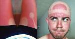 Vamos te mostrar 10 motivos (EM FOTOS), para nunca dispensar o uso do protetor solar