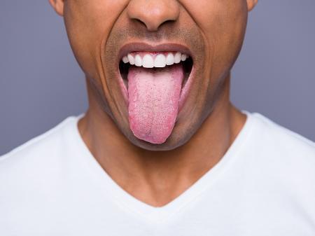 cor-língua-doenças