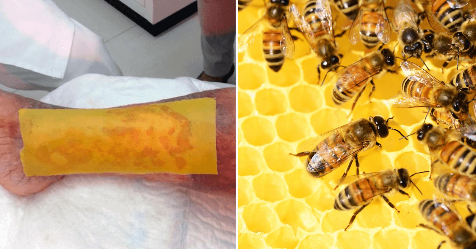 Cientistas criam adesivo feito com mel que cura feridas causadas pela diabetes em menos de 1 mês