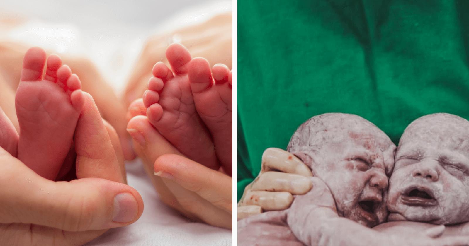 EMOCIONANTE: Gêmeas se abraçam após o nascimento e fotografia se torna viral