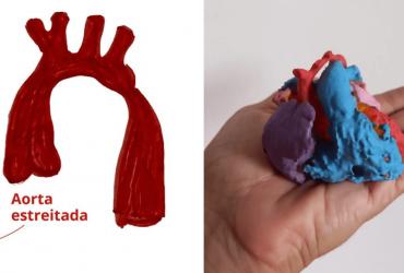 Médicos salvam vida de recém-nascido com uma impressão 3D