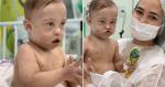 Bebê cardiopata com síndrome de Down lutando contra a leucemia vence a Covid-19