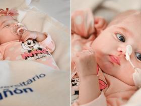 Bebê de 2 meses passa por transplante de coração inédito no mundo!