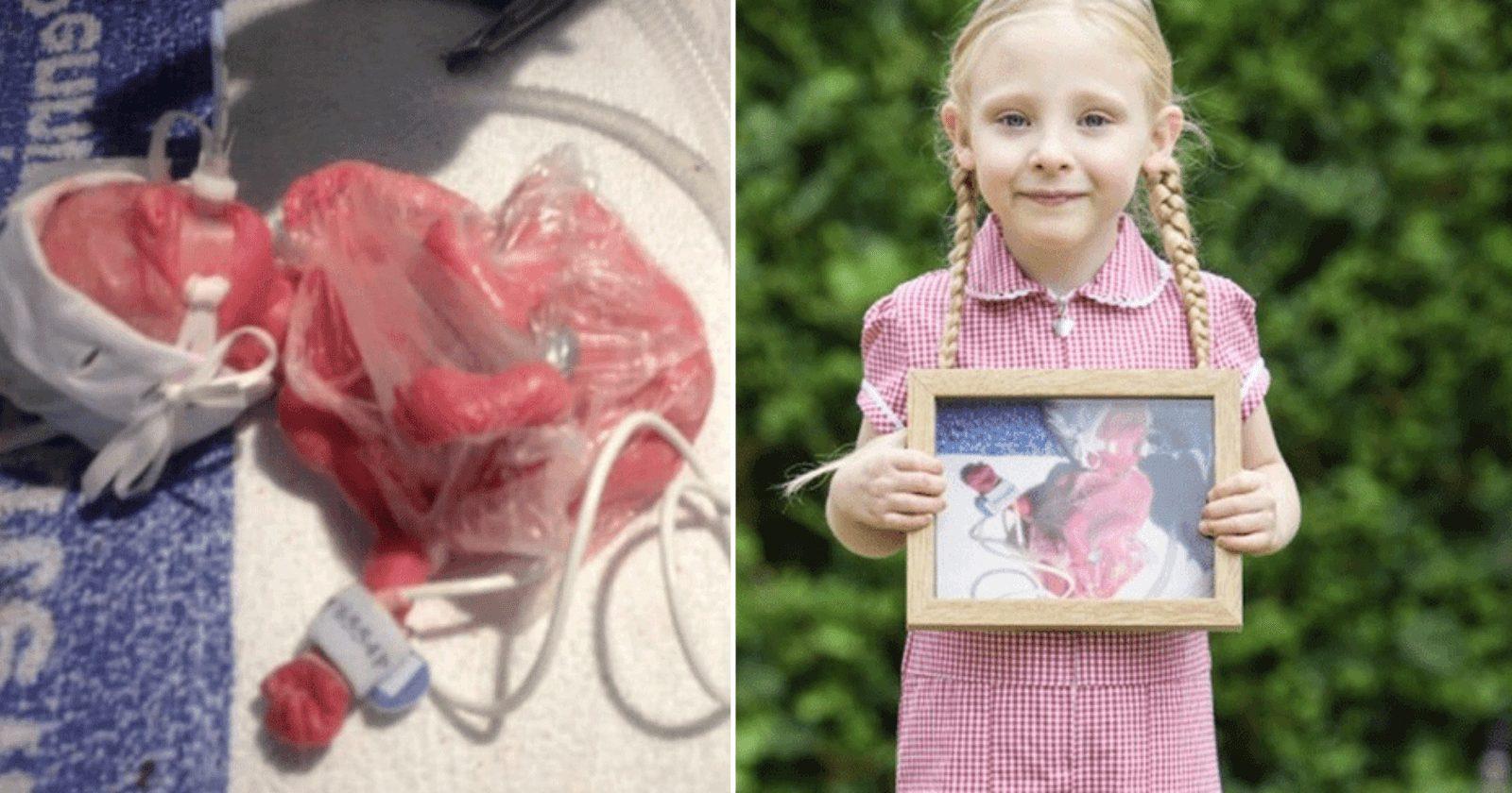 Bebê prematuro que foi mantido vivo em saco de sanduíche chega à escola